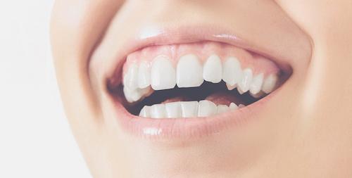 Smit Tandprothetiek - Witte tanden