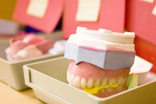 Smit Tandprothetiek - Het volledige kunstgebit